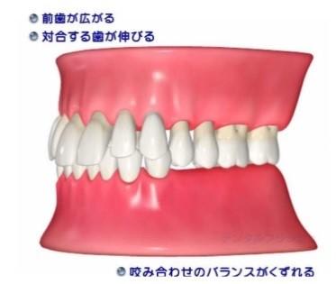 抜歯後の状態
