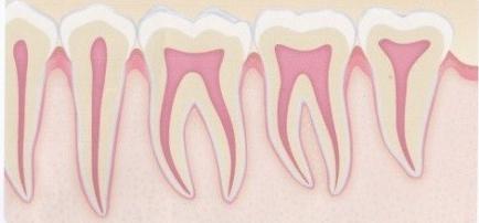 歯周病のない状態