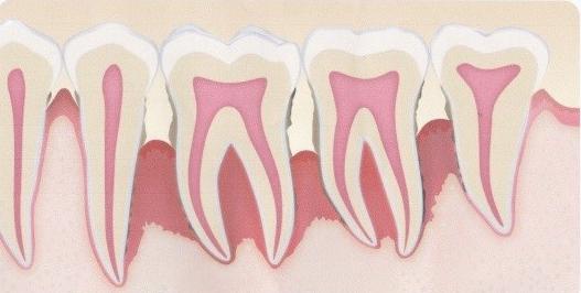 歯周病が進み、歯周ポケットが深くなり 奥の方まで歯石がついています。