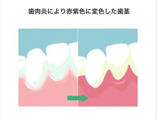 歯ぐきの状態